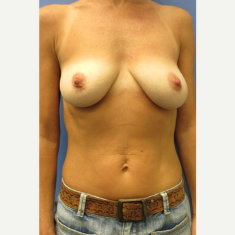 35-44 year old woman treated with Breast Lift with Implants before 3681727