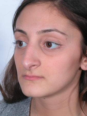 Rhinoplasty before 358880