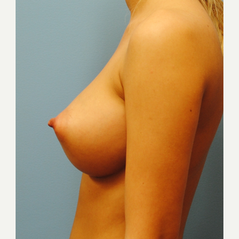 20 old woman treated with Breast Augmentation, A to D cup, 380 cc saline after 3623390