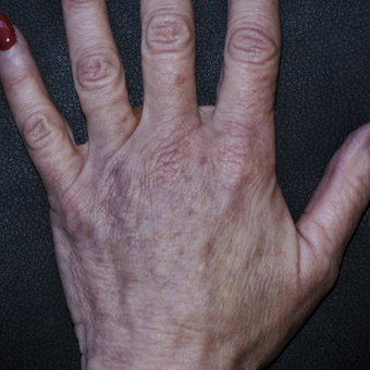 55-64 year old woman treated with Fat Transfer to Hands after 3592823