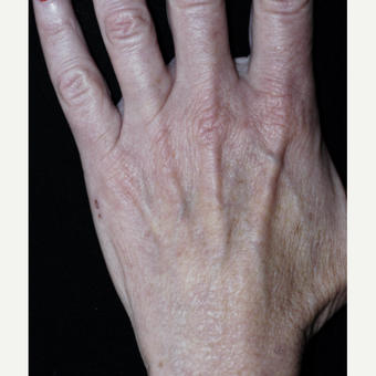 55-64 year old woman treated with Fat Transfer to Hands before 3592823