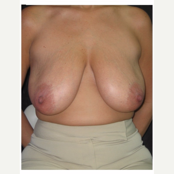 35-44 year old woman treated with Breast Lift before 3175397