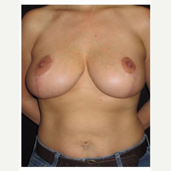 35-44 year old woman treated with Breast Lift after 3175397