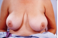 Breast Reduction before 3446223