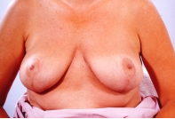 Breast Reduction after 3446223