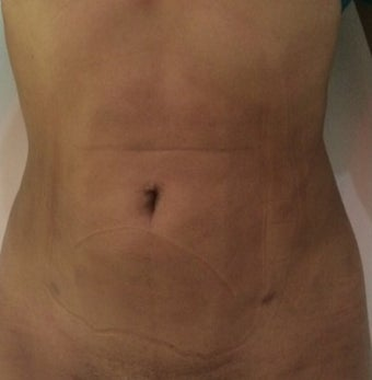 25-34 year old woman treated with Mini Tummy Tuck after 1800663