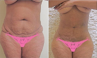 35-44 year old woman treated with Laser Liposuction before 3810591