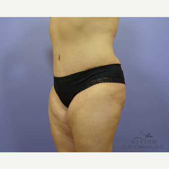 35-44 year old woman treated with Tummy Tuck after 3415602