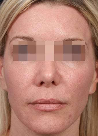 Fraxel 600 for Skin Rejuvenation after 539891