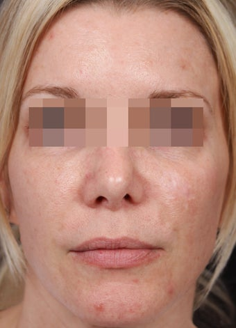 Fraxel 600 for Skin Rejuvenation before 539891