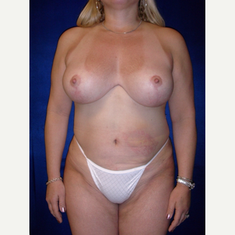35-44 year old woman treated with Breast Lift after 3718380