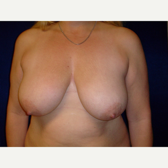 35-44 year old woman treated with Breast Lift before 3718380