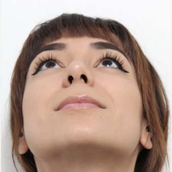18-24 year old woman treated with Rhinoplasty after 3372970
