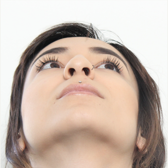 18-24 year old woman treated with Rhinoplasty before 3372970