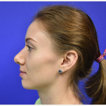 18-24 year old woman treated with Rhinoplasty before 3325424