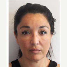35-44 year old woman treated with Facelift before 3529971