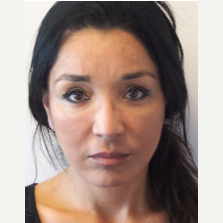 35-44 year old woman treated with Facelift after 3529971