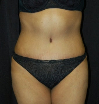 Tummy Tuck after 902734