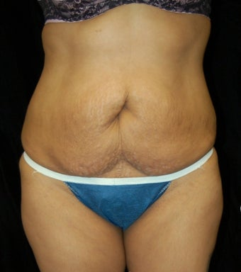Tummy Tuck before 902734
