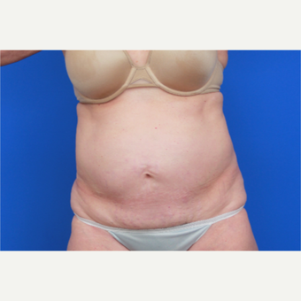 56- year old woman treated with SculpSure before 2976810