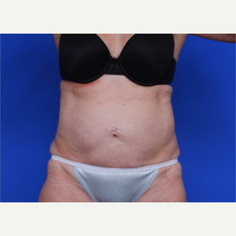 56- year old woman treated with SculpSure after 2976810