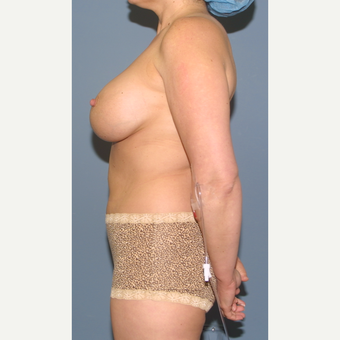 35-44 year old woman treated with Breast Reduction before 3454185