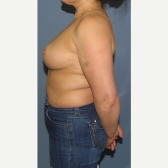 35-44 year old woman treated with Breast Reduction after 3454185