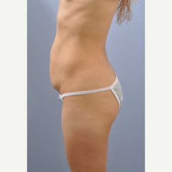 25-34 year old woman treated with Tummy Tuck before 3610483