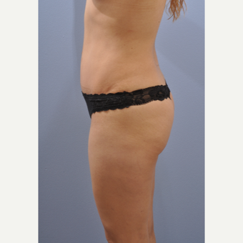 25-34 year old woman treated with Tummy Tuck after 3610483