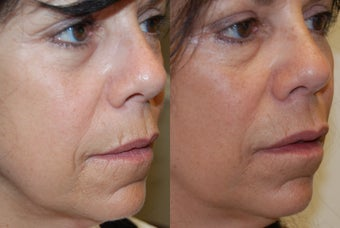 Lip Augmentation and Wrinkle Reduction with Silikon-1000. before 1364662
