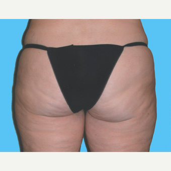 Liposuction after 3810622