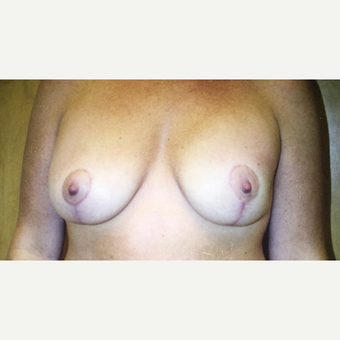 45-54 year old woman treated with Breast Lift after 3333568