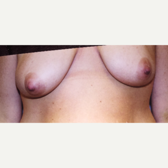 45-54 year old woman treated with Breast Lift before 3333568