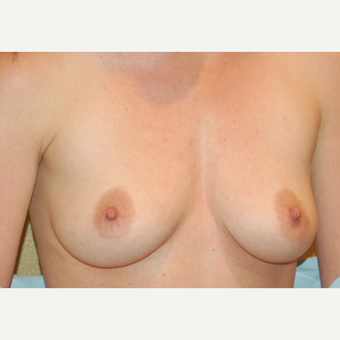 25-34 year old woman treated with Breast Implants before 3236045