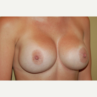 25-34 year old woman treated with Breast Implants after 3236045