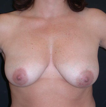 Breast augmentation with breast lift before 330178