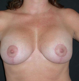 Breast augmentation with breast lift after 330178