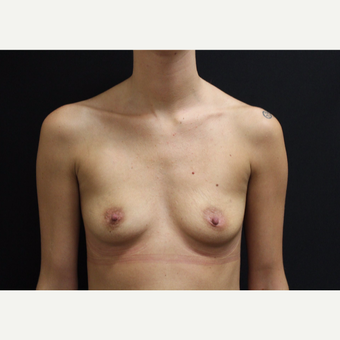 18-24 year old woman treated with Breast Augmentation before 3099618