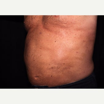 Laser Liposuction - Abdomen after 2014522