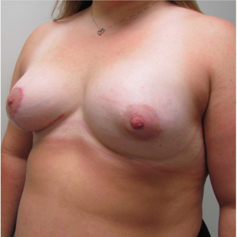 Breast Lift with Implants for a Young Woman with Tuberous Breasts & Breast Asymmetry after 3387196