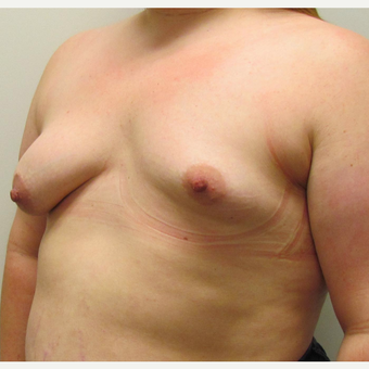 Breast Lift with Implants for a Young Woman with Tuberous Breasts & Breast Asymmetry before 3387196