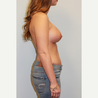 25-34 year old woman treated with Breast Augmentation after 3027306