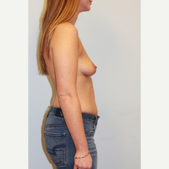 25-34 year old woman treated with Breast Augmentation before 3027306