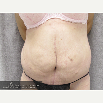 35-44 year old woman treated with Panniculectomy after 1556021