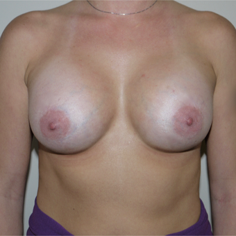 25-34 year old woman treated with Breast Implants after 3531941