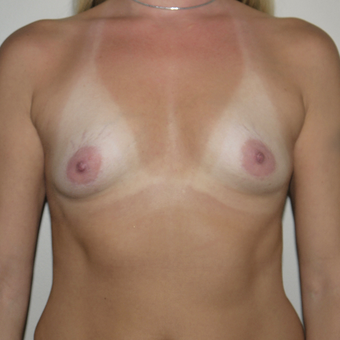 25-34 year old woman treated with Breast Implants before 3531941