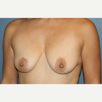 Breast Augmentation With Lift before 3610092