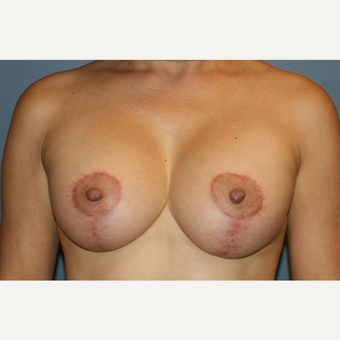 Breast Augmentation With Lift after 3610092