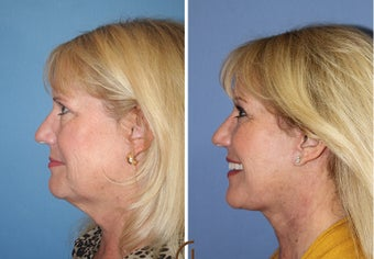 Neck lift  before 1344084