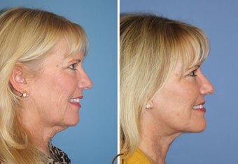 Neck lift  after 1344084